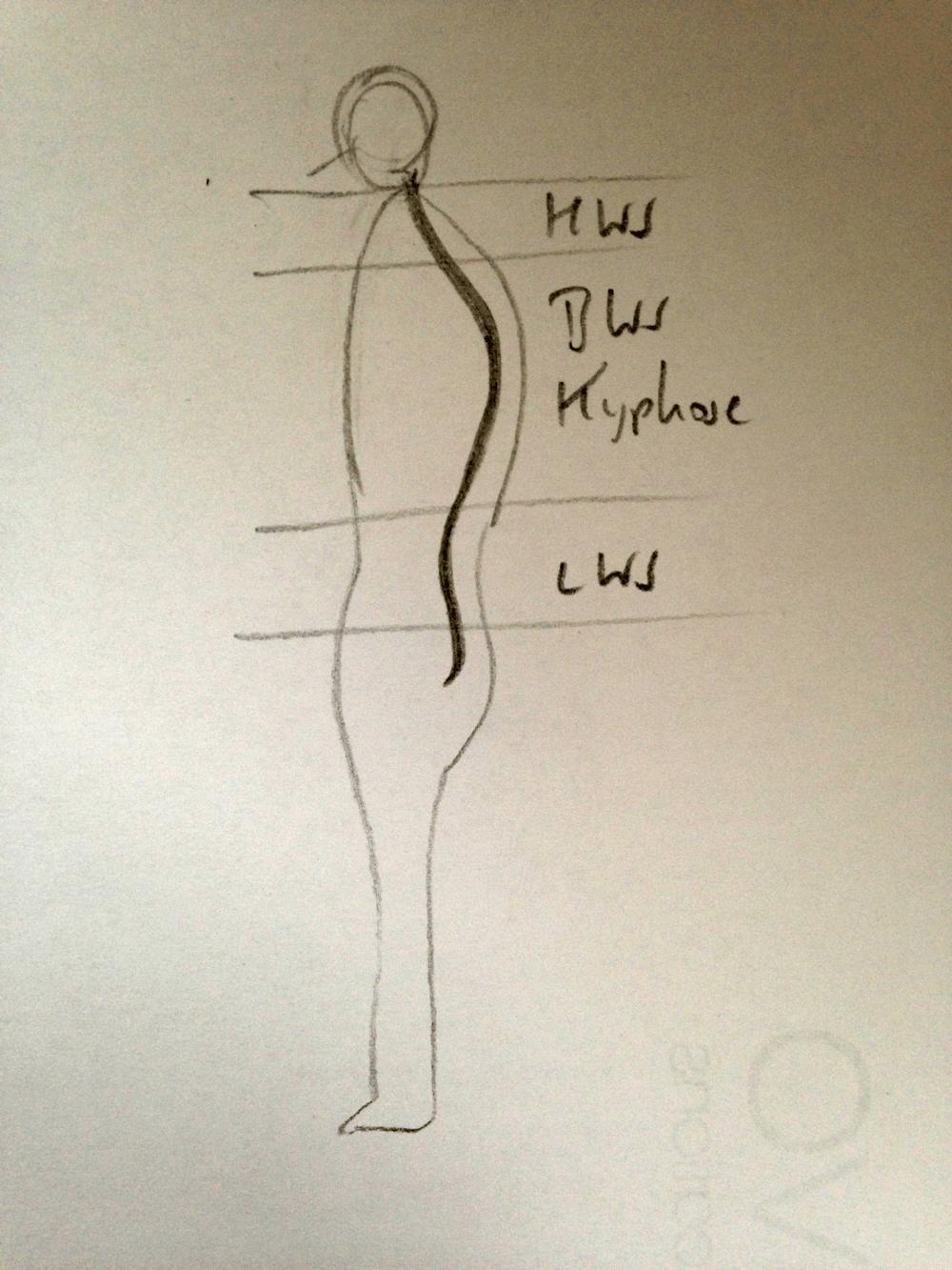 Darstellung einer Hyperkyphose in der Brustwirbelsäule (BWS) sowie einer natürlichen Lordose der Halswirbelsäule (HWS) und der Lendenwirbelsäule (LWS)